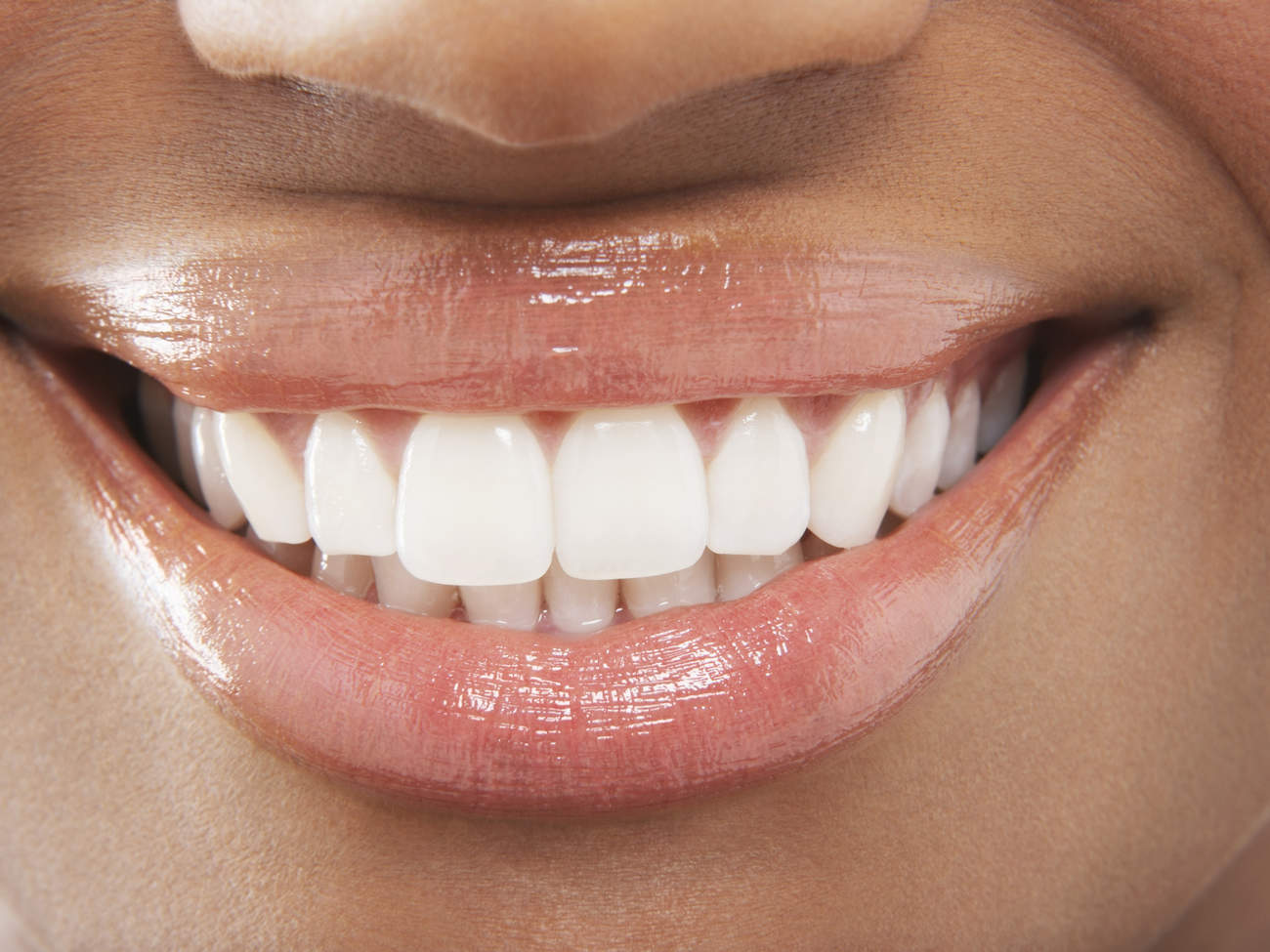 teeth-smiling-GettyImages-77746397