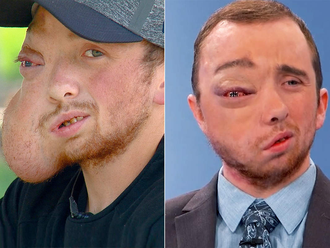 lucas-mcculley-tumor-removed-face