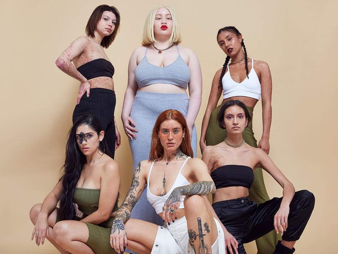 missguided-models-skin-conditions