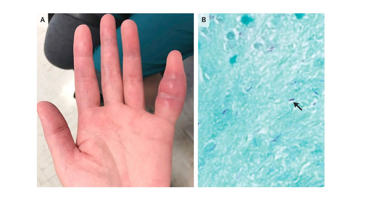 swollen-pinky-tuberculosis