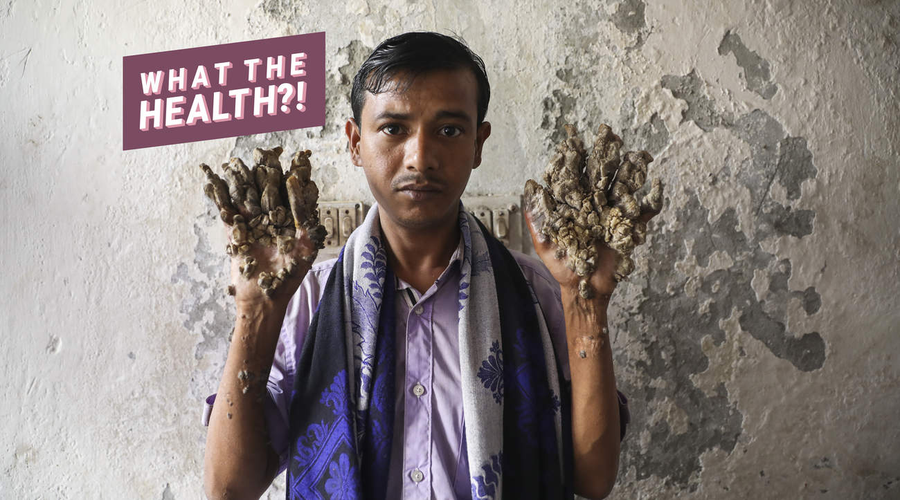 health tree man syndrome HPV disease condition