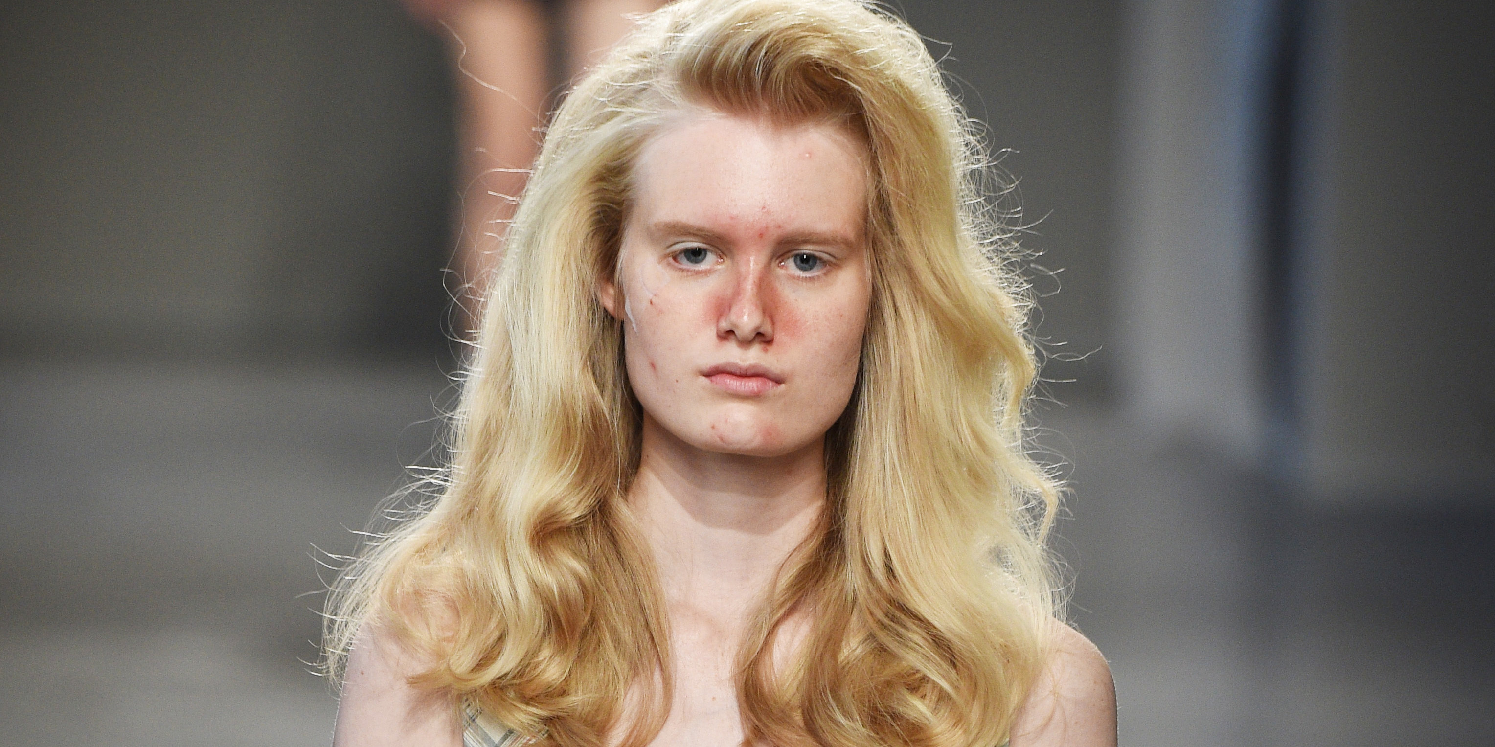 This Milan Runway Show Featured Acne And Blemishes On The