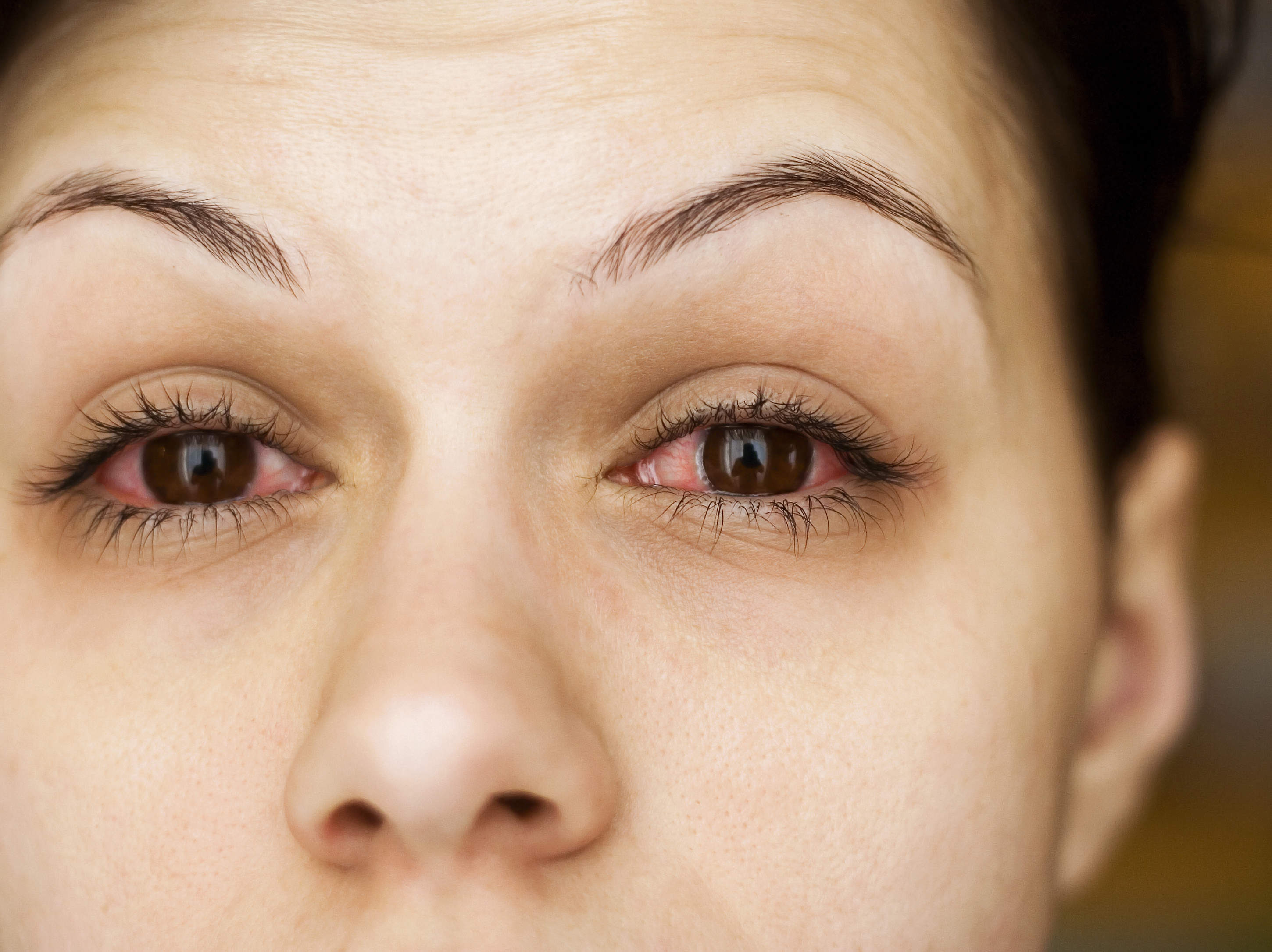 Pain in eye after sex