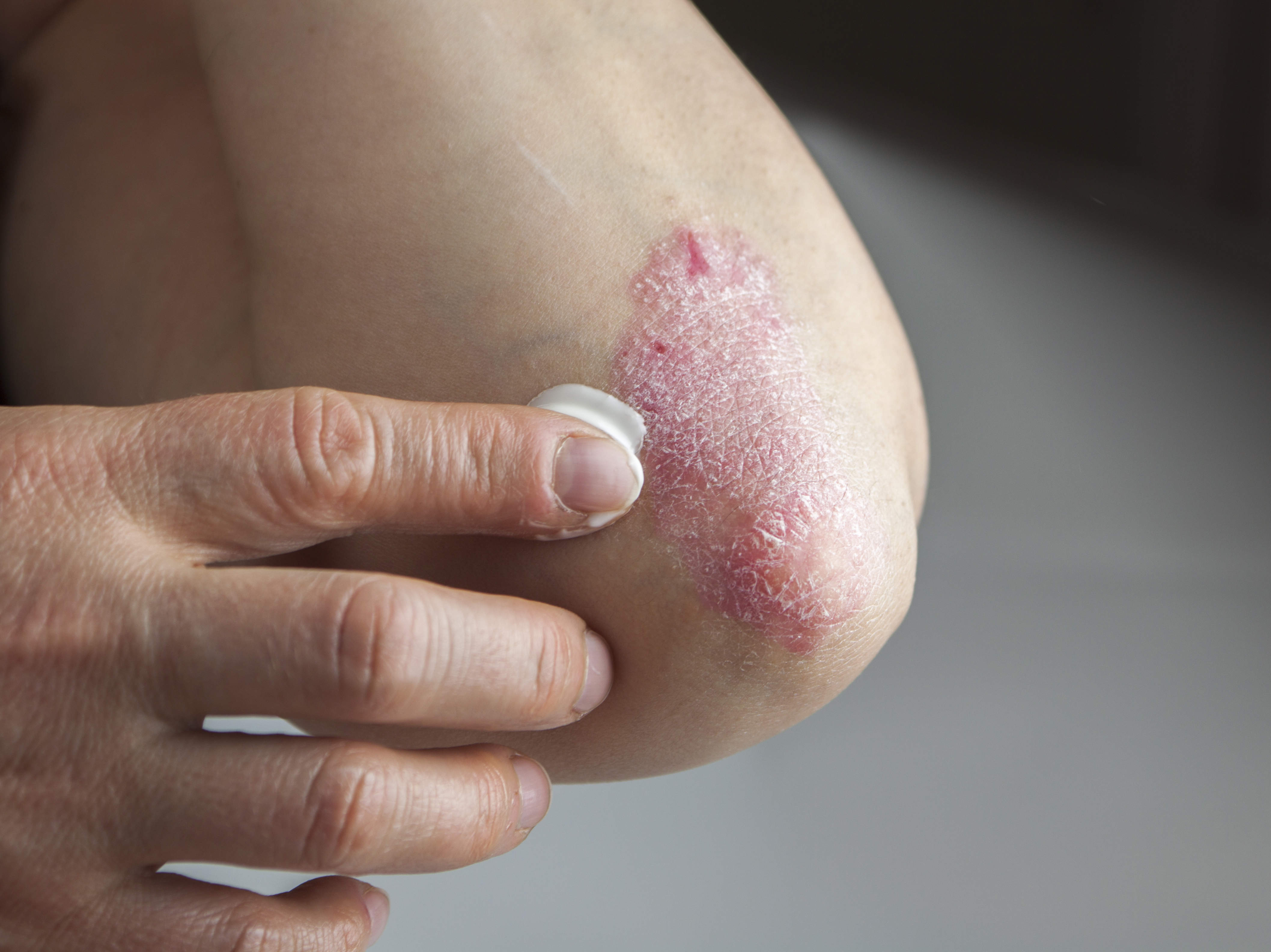 Applying topical cream ointment to psoriasis on elbow