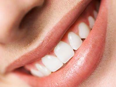 Things That Can Ruin Your Smile - Health