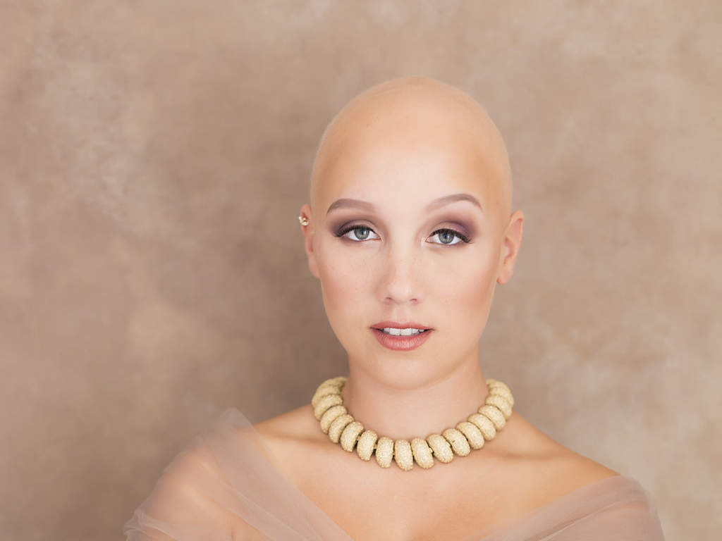 Meet The Inspiring Woman Embracing Her Alopecia Even On Her Wedding