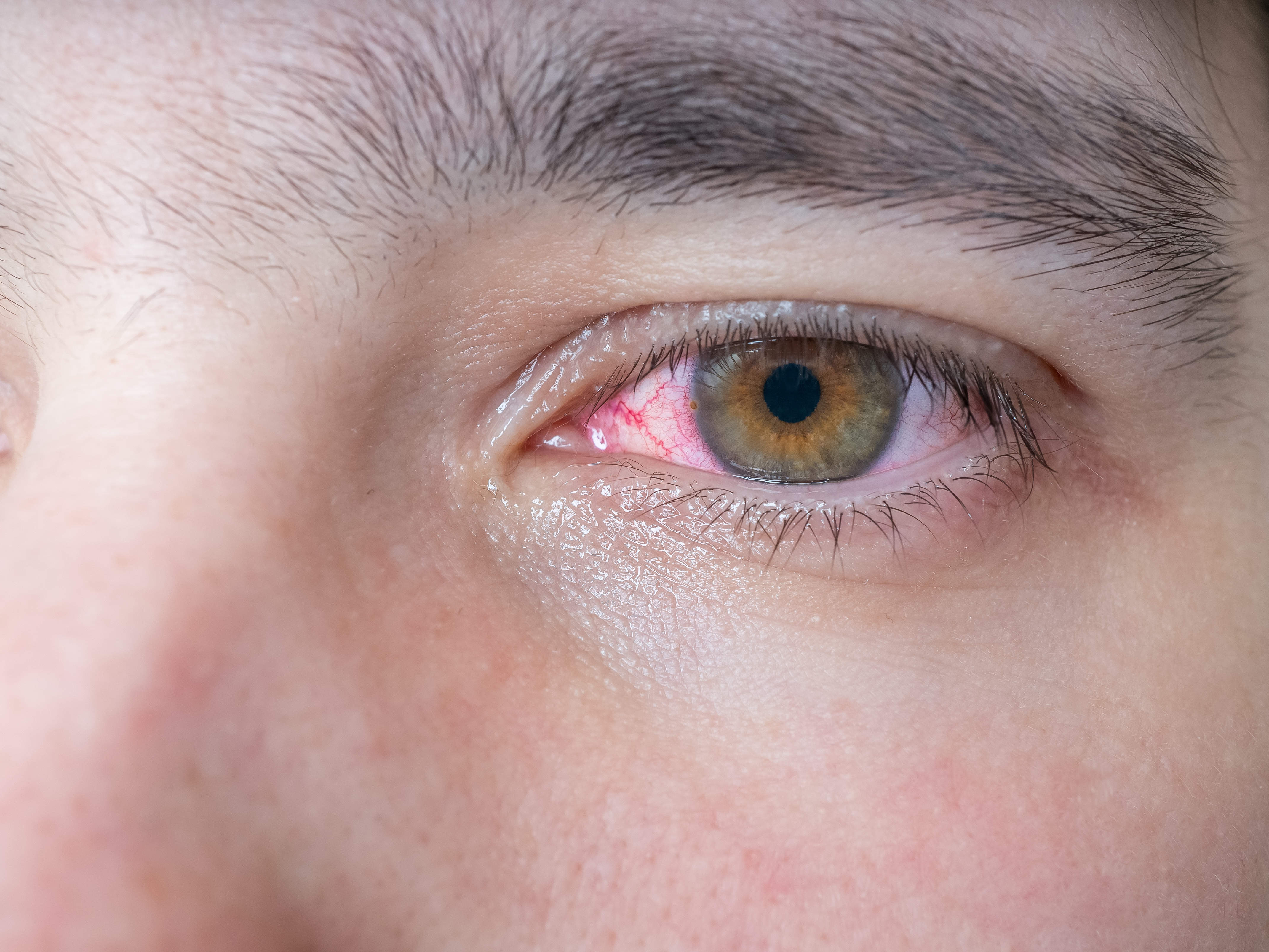 Can Stress Cause Temporary Blindness In One Eye Best