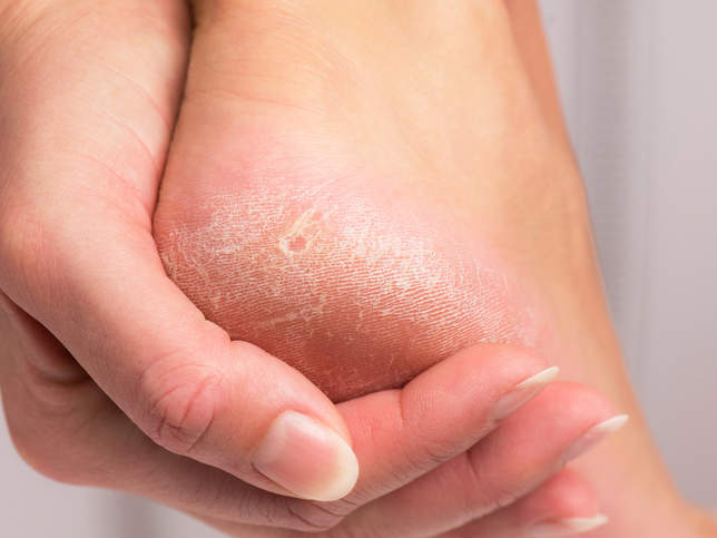 Itchy Feet: Causes, Symptoms, and Remedies - Health