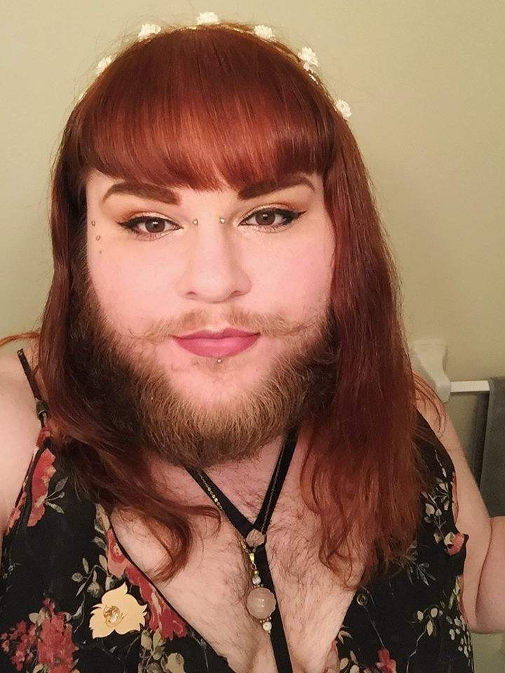 These 8 Women With Pcos Are Embracing Their Beards And Body Hair