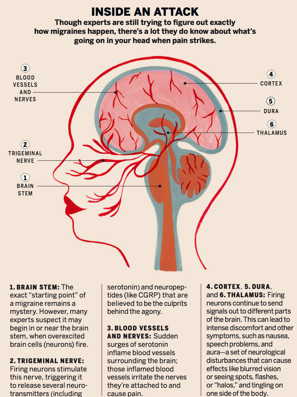related: 11 surprising headache triggers