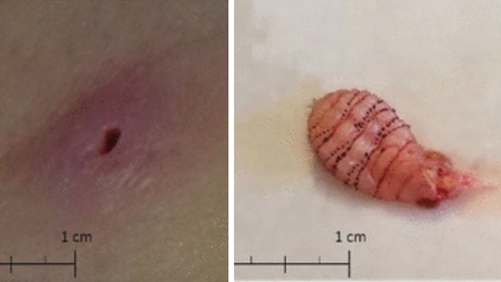Florida Woman Discovers Deeply Embedded Maggot In Her Groin Health