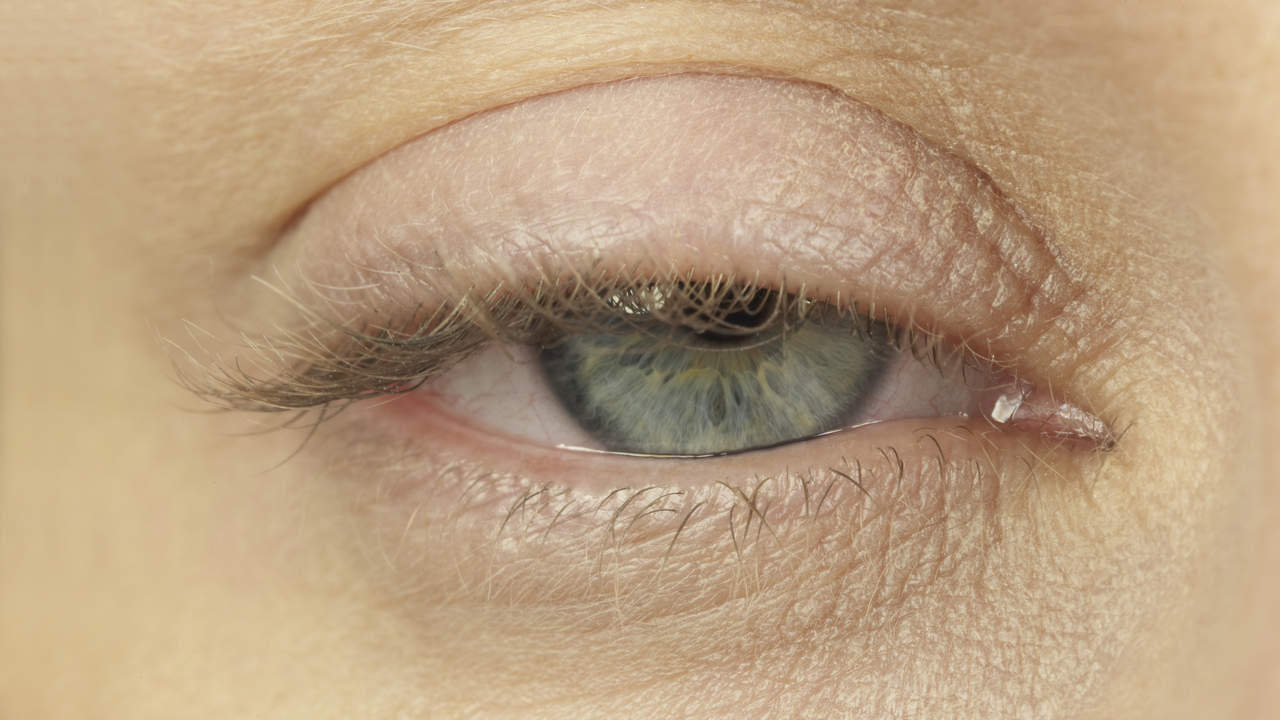 Close up of sagging, heavy, drooping eyelid