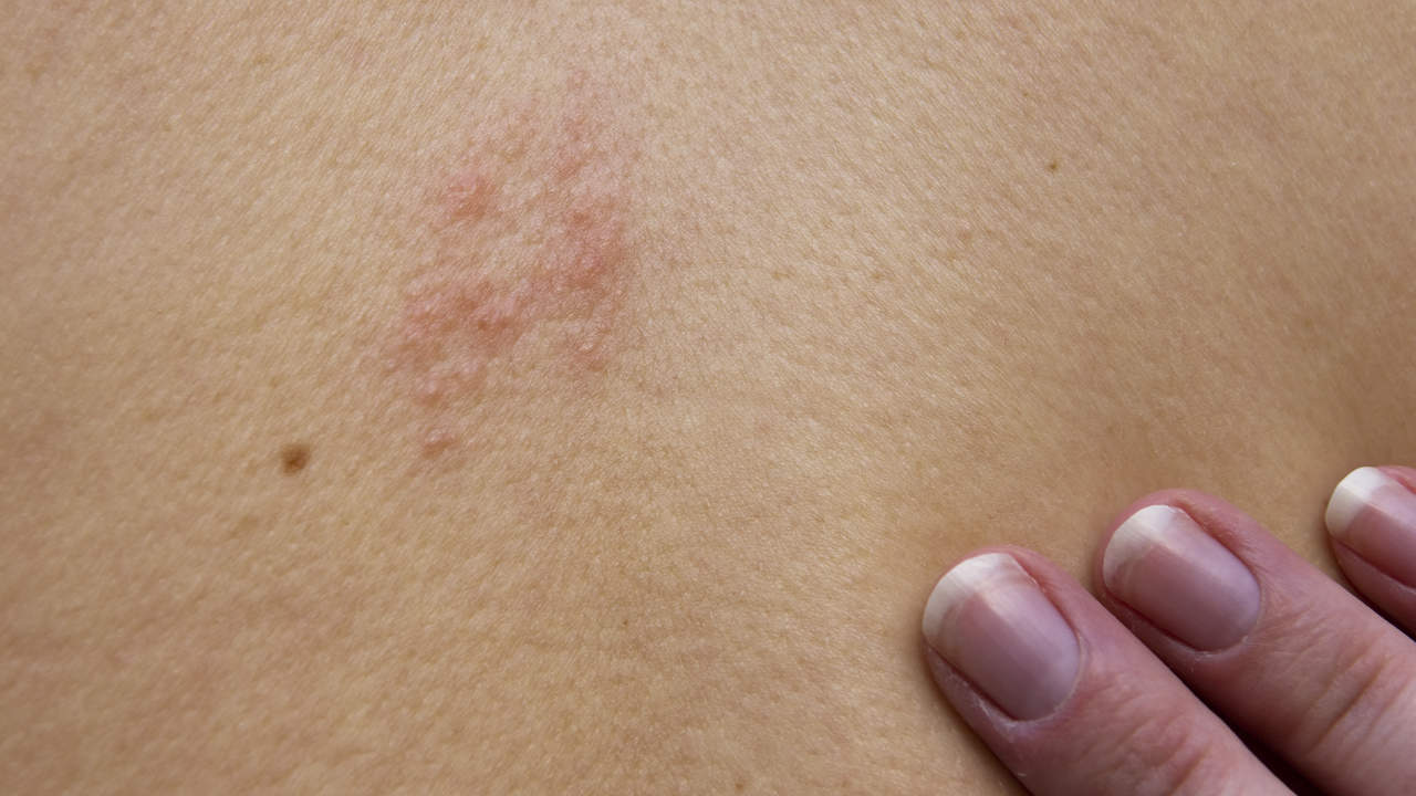 shingles-chest-pain
