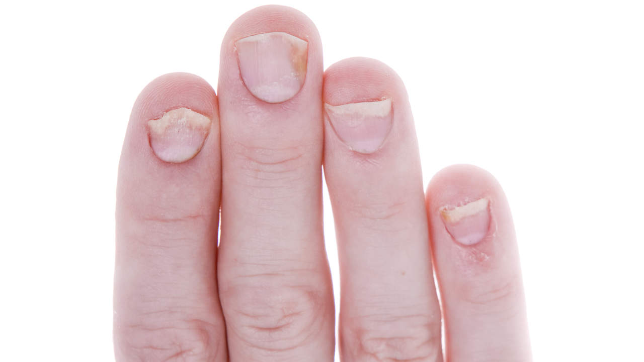 psoriasis-condition-center-finger-nail