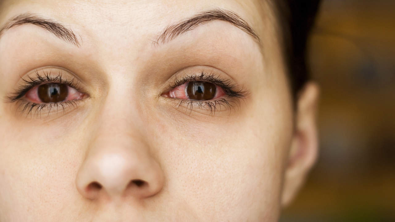 8 Reasons Your Eyes Are Red—and How to Treat Them