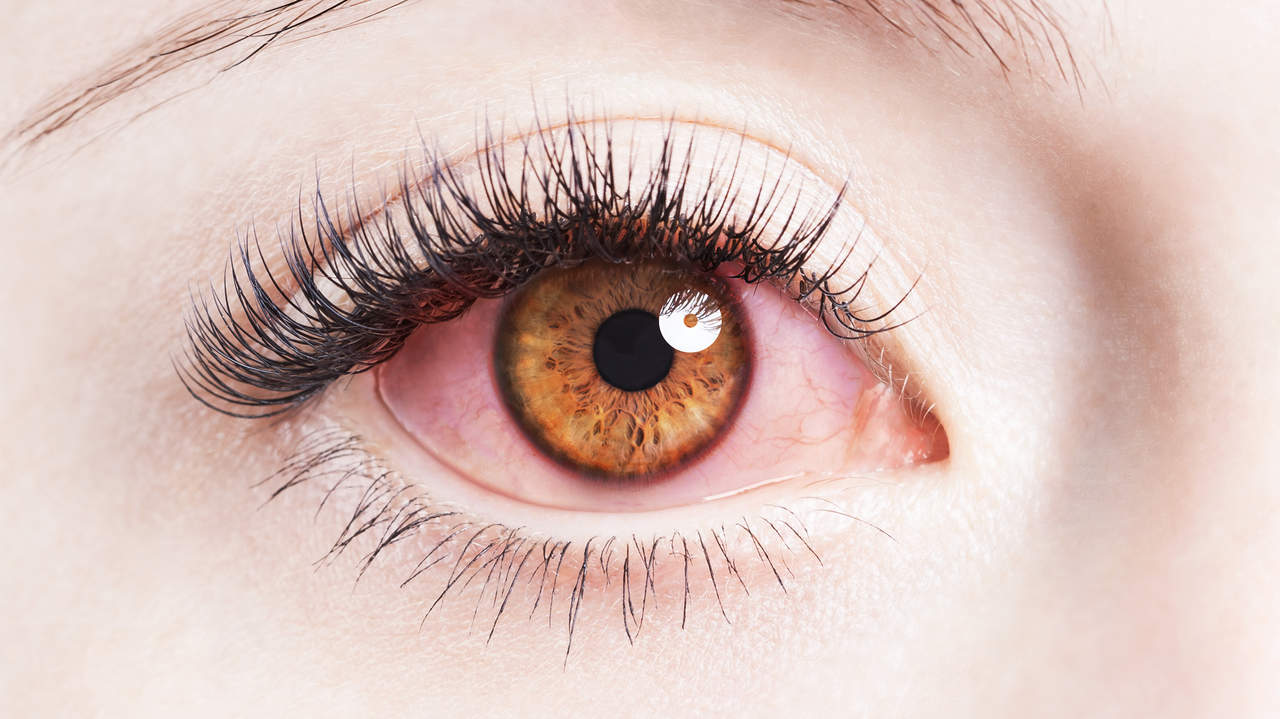 Why Eyes Are Red And How To Get Rid Of Bloodshot Eyes Health
