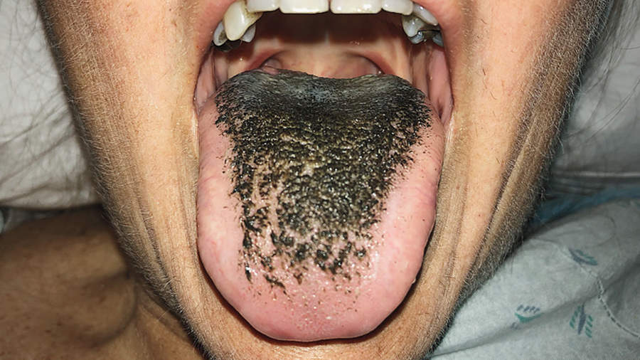 Black Hairy Tongue: Symptoms and Treatment - Health