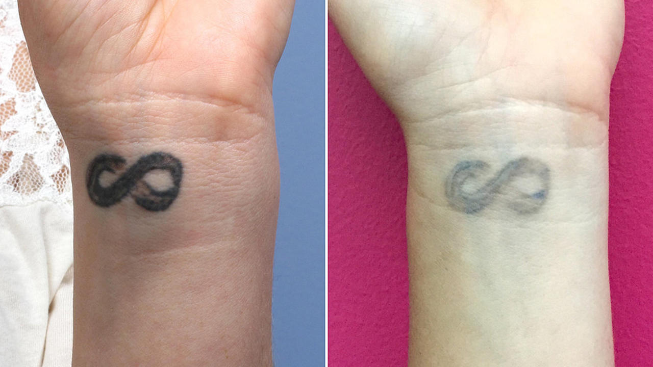 I Always Wanted A Tattoo But Now I M Getting Mine Removed
