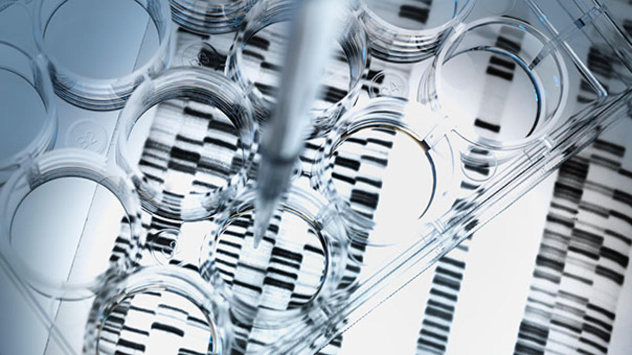 What you can learn from controversial diy gene tests like 23andme what you can learn from controversial diy gene tests like 23andme health solutioingenieria Choice Image