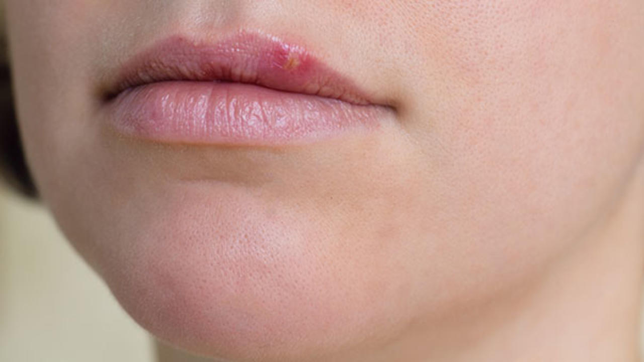 How can i tell if i have herpes