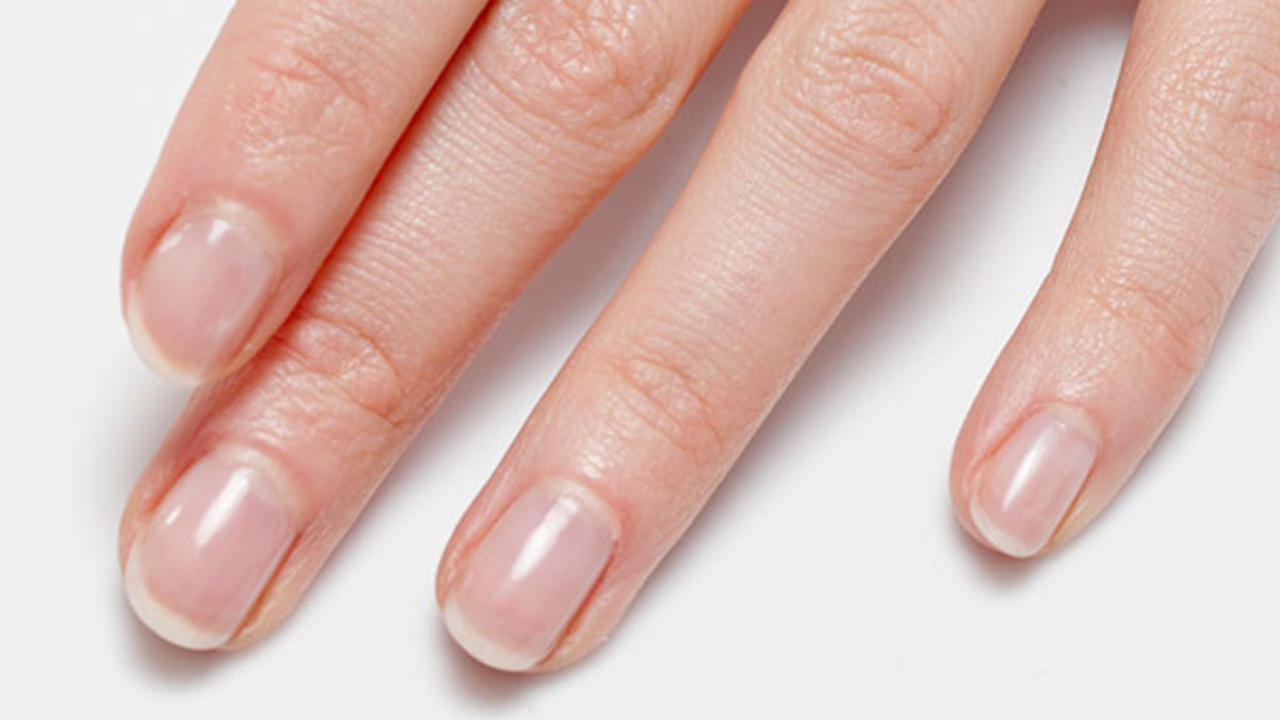 What Your Nails Say About Health And
