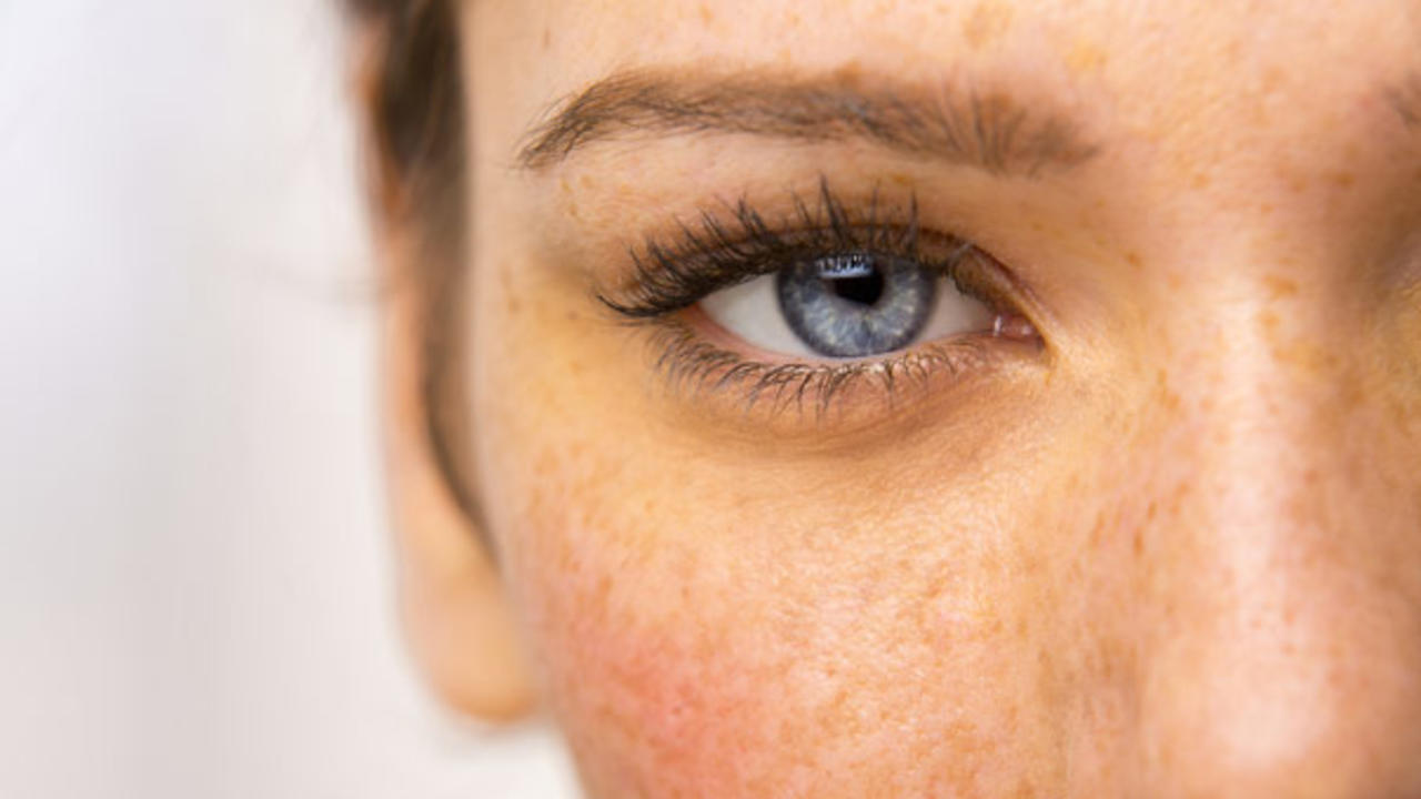 3 Weird Causes of Dark Circles That Have Nothing to Do ...