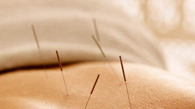 acupuncture-ra