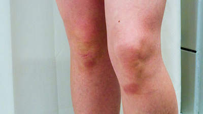 diabetes-symptoms-bruise-2-diabetes