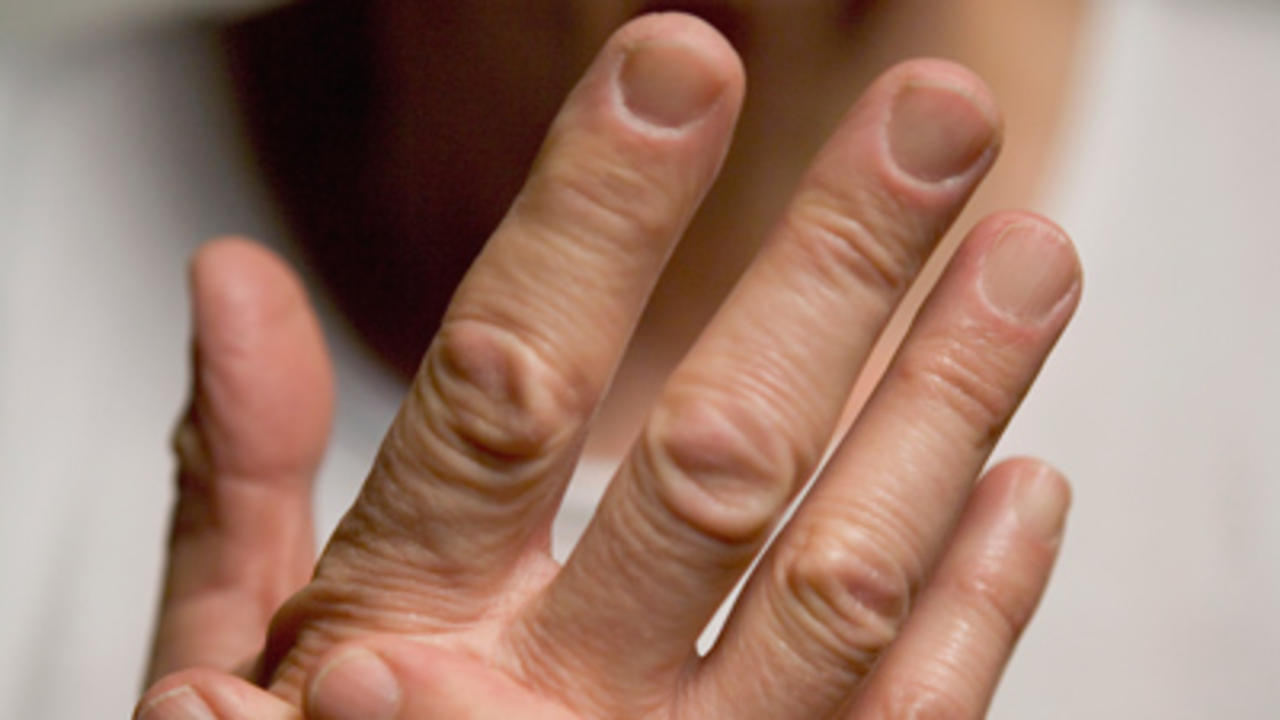 Are You at Risk for Psoriatic Arthritis?