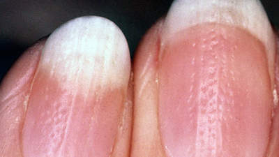 You have psoriasis in your nails