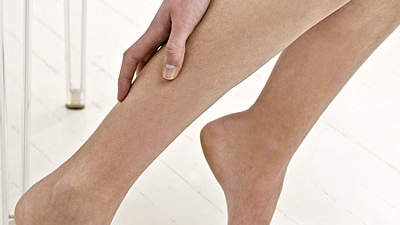 Atrophy of calf muscles