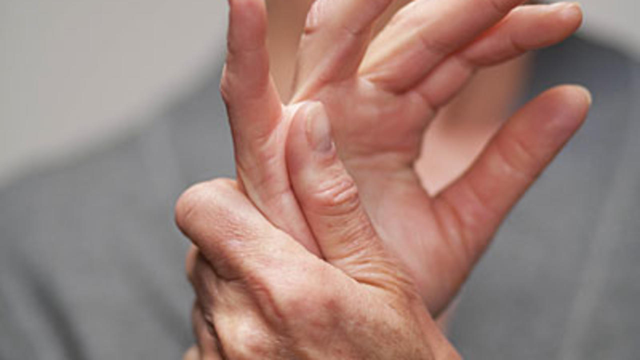 15 Surprising Facts About Rheumatoid Arthritis