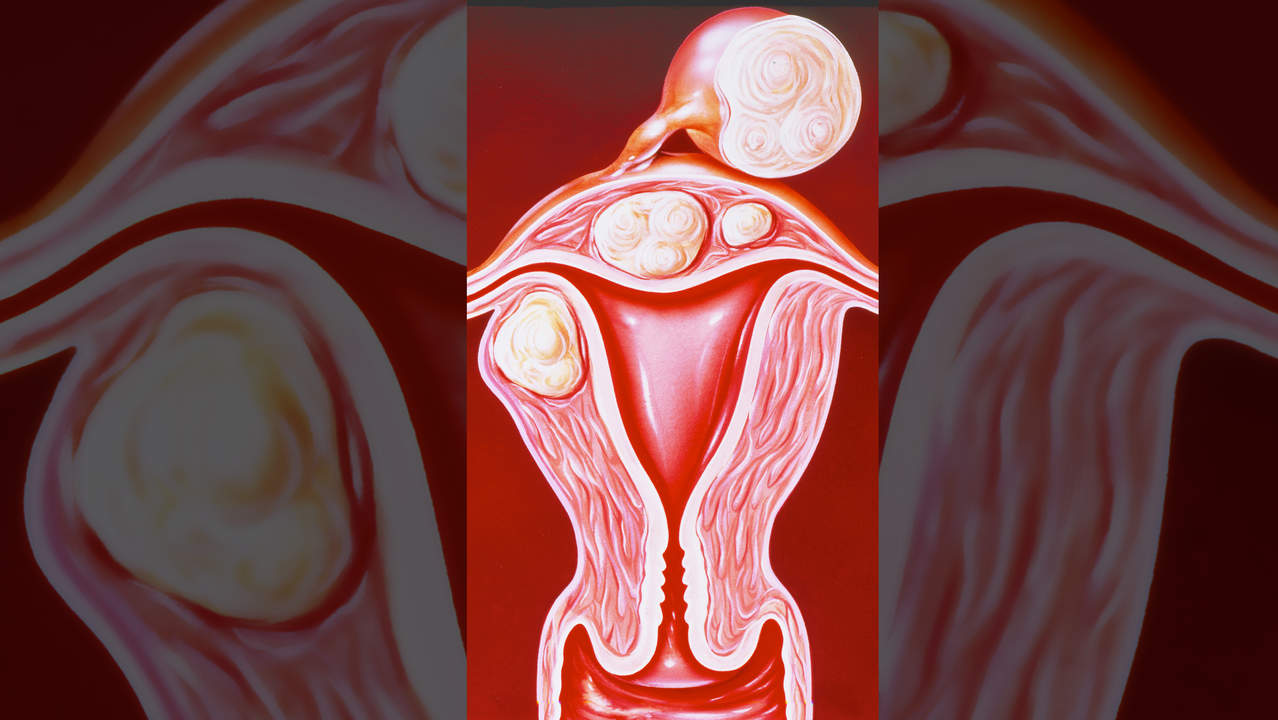 Fibroids illustration
