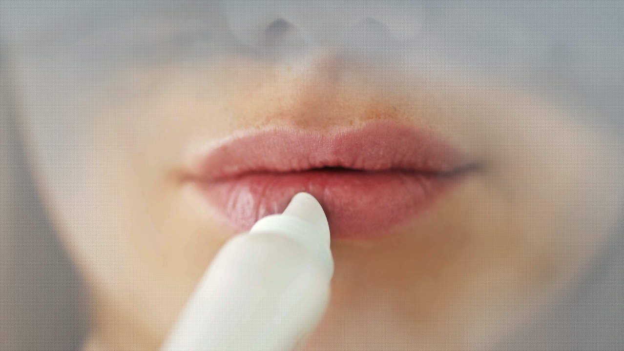 The Best Cold Sore Treatments for Fast Relief