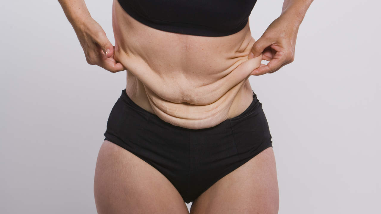Extreme Weight Loss: Women Get Real About Their Loose Skin ...