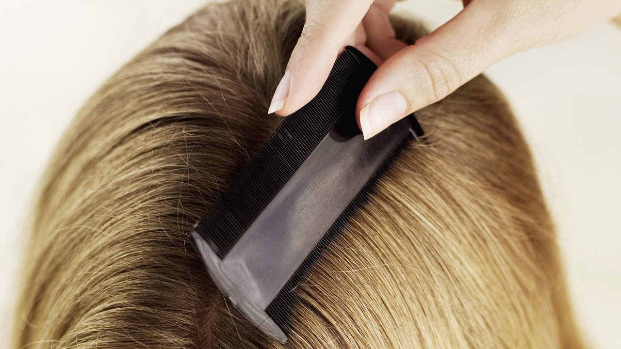 Natural Ways To Get Rid Of Head Lice