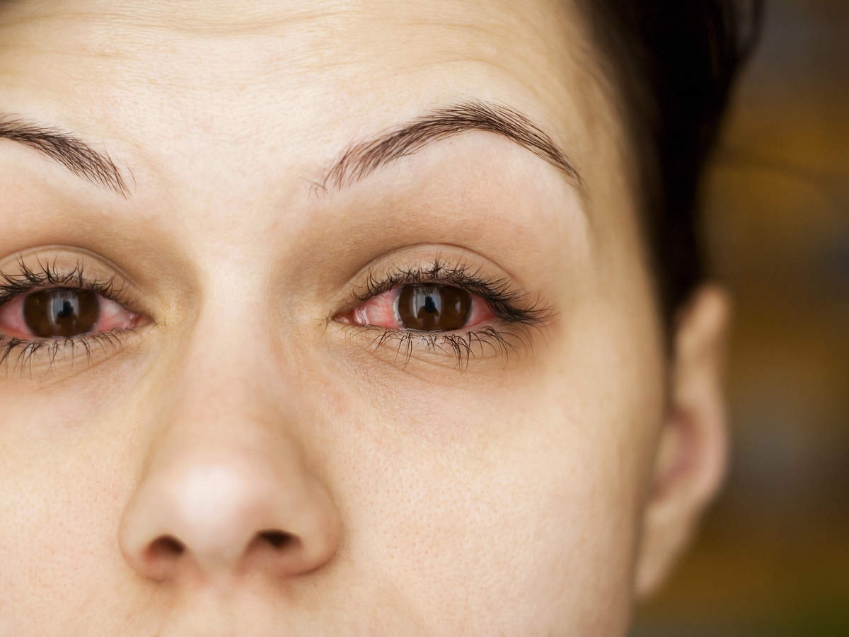 Causes of a Red Spot on Eye