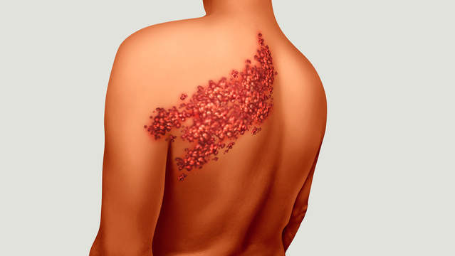 Pityriasis Rosea Christmas Tree Rash Pictures Causes Beauteous