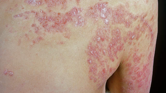 Psoriasis: Symptoms, Diagnosis, Treatment,