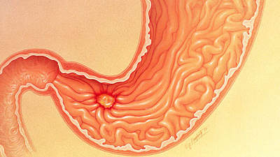 20 Reasons Why Your Stomach Hurts - Health