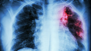 tuberculosis-chest-x-ray