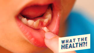 tooth lung girl dentist health wellbeing surgery accident