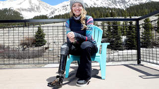 Paralympian Amy Purdy Must Choose Between Keeping Her 'Kidney or Leg' After Developing Blood Clot