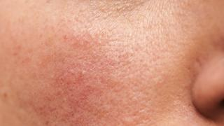 Rosacea on Skin TIME health stock