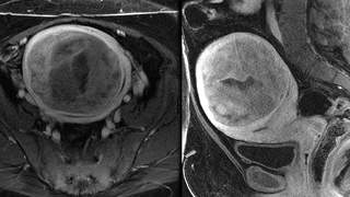 61 Lb. Tumor Removed From Woman's Uterus After She Arrives at Hospital Struggling to Breathe