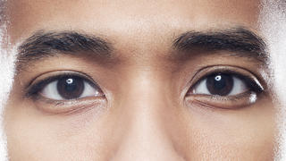 lazy-eye-male-eyes-closeup