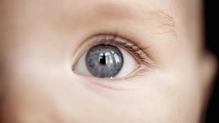 eye-baby-flash-pupil-cancer