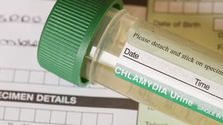 std-test-chlamydia