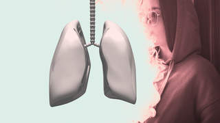 hard-metal-lung-syndrome