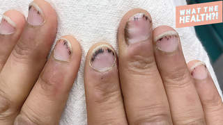 splinter-hemorrage nails injury hemorrhage bruise wellbeing health dermatology